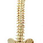 Tracción vertebral
